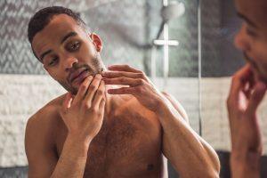 ingrown hair cause irritation beard skin surface