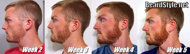 patchy-beard-growth14 How to Deal With Patchy Beard and Get Thicker Facial Hair