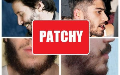 patchy-beard-photo