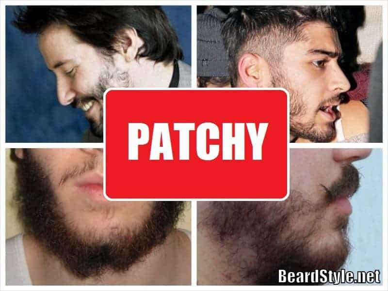 How to Deal With Patchy Beard and Get Thicker Facial Hair