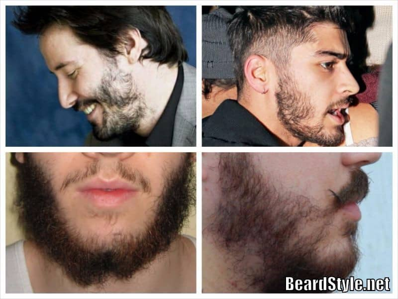 hormones and facial hair