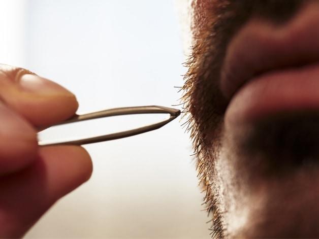 removing ingrown hair from beard