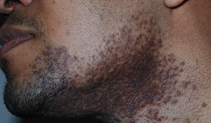 ingrown-hair-beard 10 Tips to Grow a Long and Healthy Beard