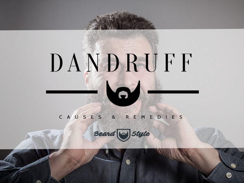 beard-dandruff Beard Dandruff: Causes and How to Get Rid of It