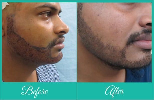 beard-transplant-1 Beard Transplant - Are They Really Worth The Cost?
