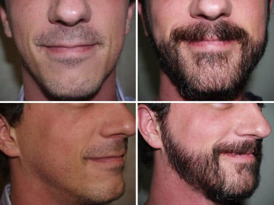 Beard Transplant Things You Should Know Beardstyle
