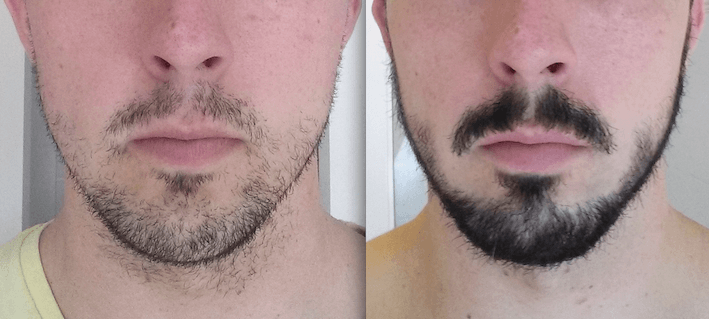 3-months-after-taking-rogain-for-beard-growth Good or Bad: Does Rogaine Really Help Grow a Beard?