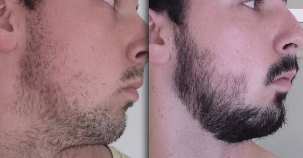 After-3-months-of-taking-taking-Minoxil-for-beard-e1470749123111 Good or Bad: Does Rogaine Really Help Grow a Beard?