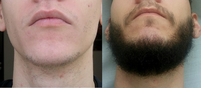 before-and-after-rogaine-for-beard-e1470749282555 Good or Bad: Does Rogaine Really Help Grow a Beard?