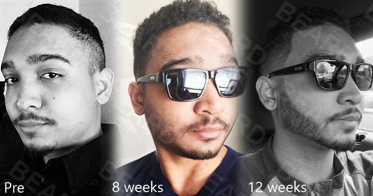 Different phases of beard growth after taking Rogaine