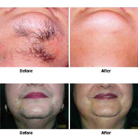 How to get rid of chin hair permanently