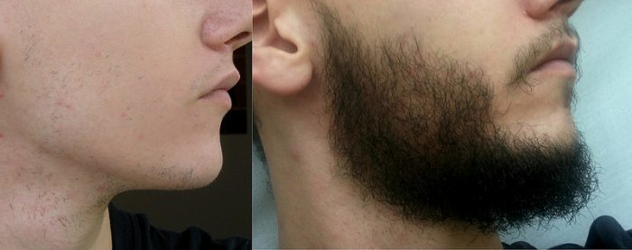 rogaine-beard-before-and-after-e1470749410637 Good or Bad: Does Rogaine Really Help Grow a Beard?