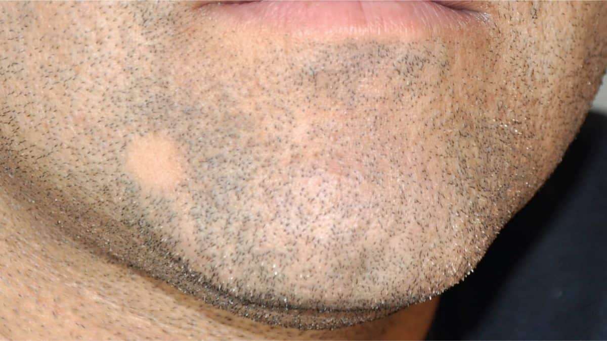 bald spot in beard