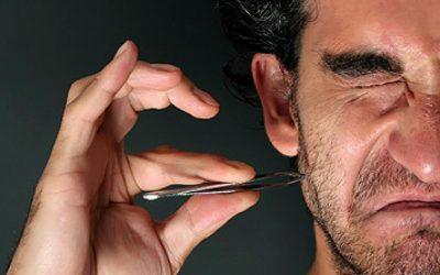 Ingrown Facial Hair