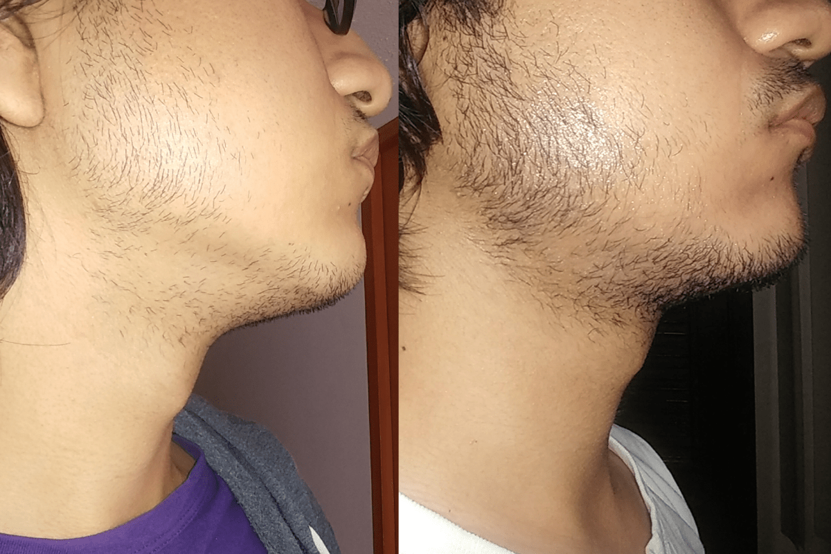 45-days Minoxidil Beard Growth: Real Before and After Photos
