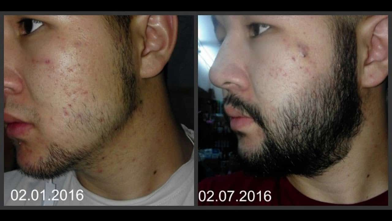 maxresdefault-3 Minoxidil Beard Growth: Real Before and After Photos