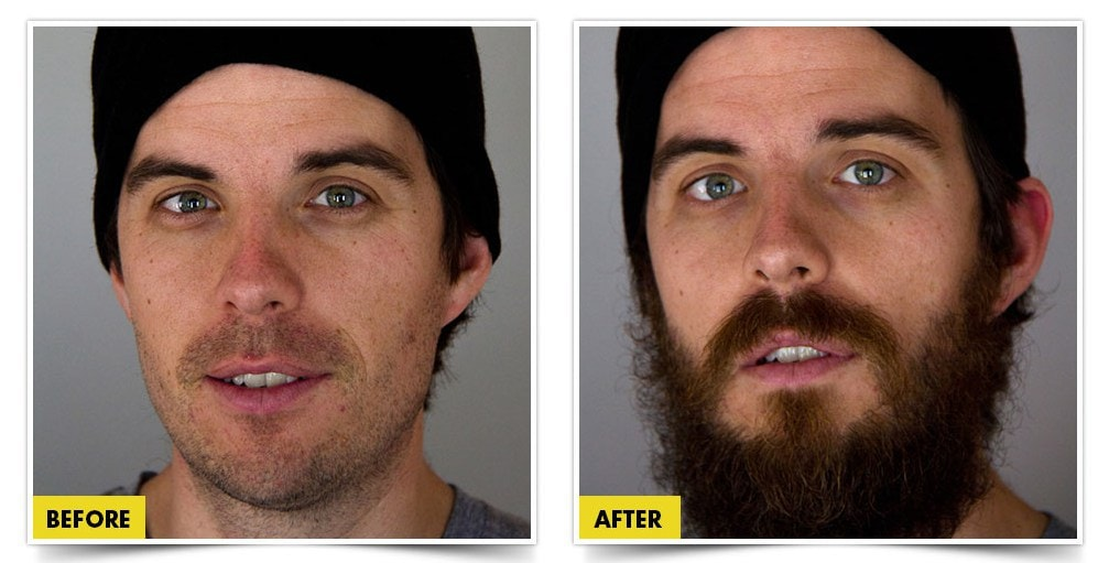 before-and-after-pictures Top 7 Beard Growth Products: Insider's Review & Buying Guide
