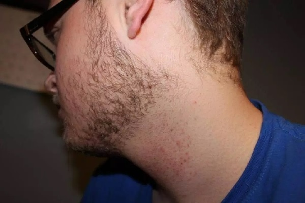 Folliculitis on skin
