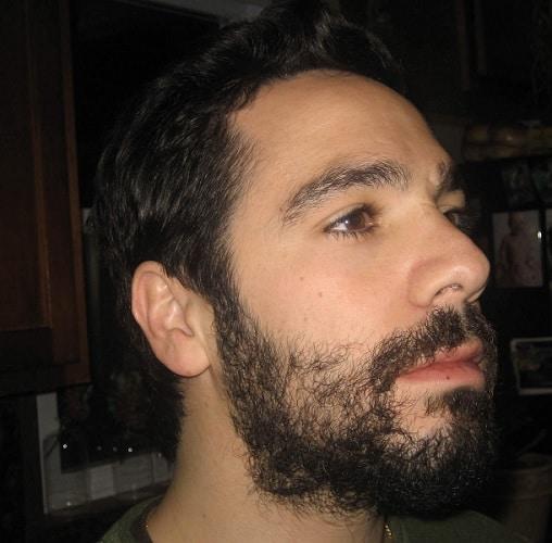 uneven-beard-3 5 Simple Tips to Fix An Uneven Beard