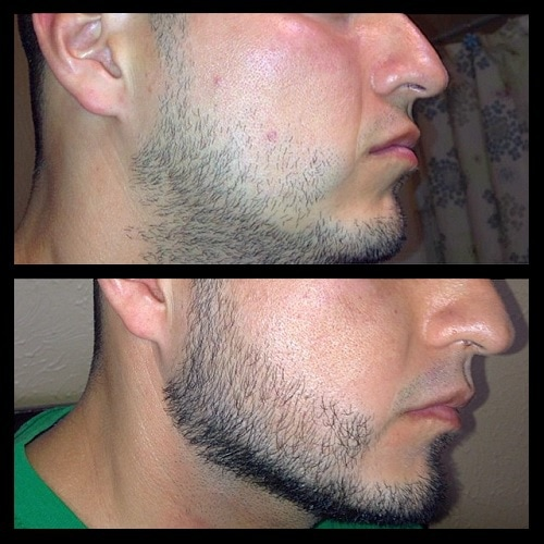 using-minoxidil-6 Minoxidil Beard Growth: Real Before and After Photos