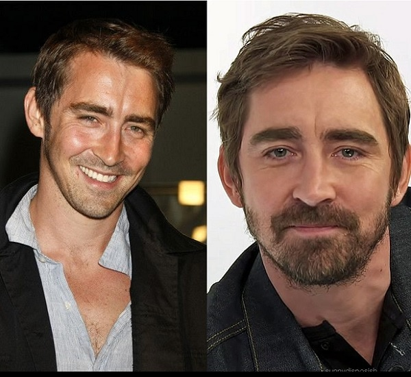 lee-pace 21 Photos Of Celebrities With & Without Beard