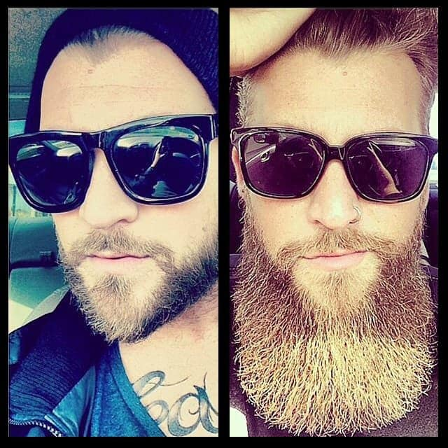 beard-before-and-after-11 45 Amazing Beard Before and After Transformation Photos