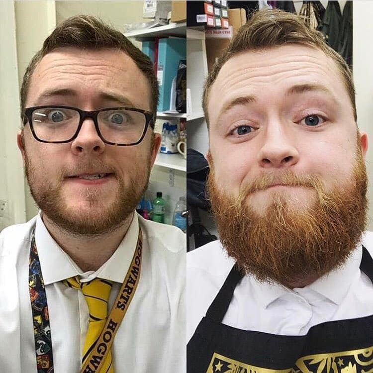 beard-before-and-after-12 45 Amazing Beard Before and After Transformation Photos
