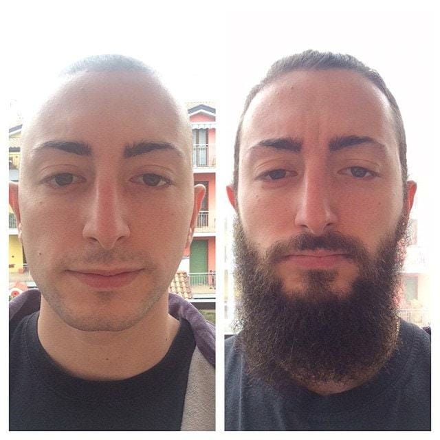 beard-before-and-after-14 45 Amazing Beard Before and After Transformation Photos