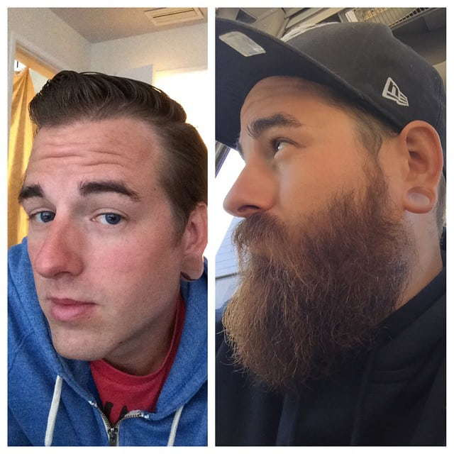 beard-before-and-after-16 45 Amazing Beard Before and After Transformation Photos
