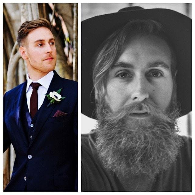 beard-before-and-after-21 45 Amazing Beard Before and After Transformation Photos