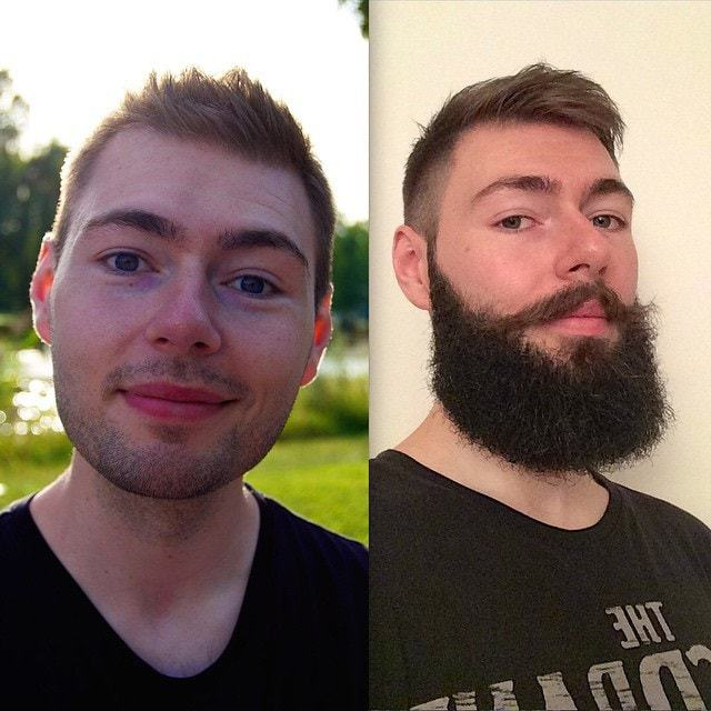 beard-before-and-after-3 45 Amazing Beard Before and After Transformation Photos