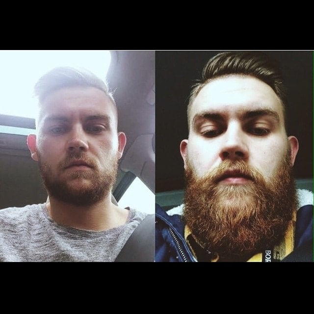 beard-before-and-after-32 45 Amazing Beard Before and After Transformation Photos