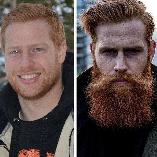 beard-before-and-after-33 45 Amazing Beard Before and After Transformation Photos