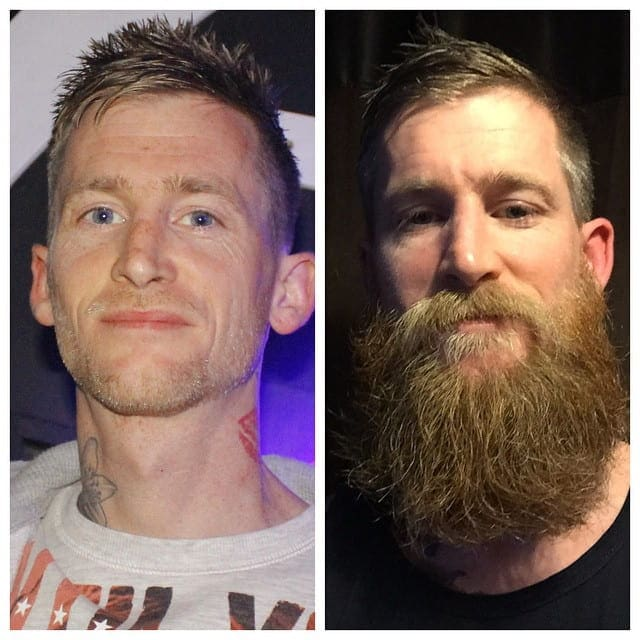 beard-before-and-after-39 45 Amazing Beard Before and After Transformation Photos