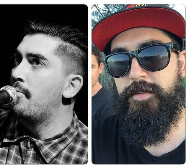 beard-before-and-after-40 45 Amazing Beard Before and After Transformation Photos