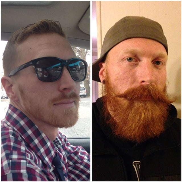 beard-before-and-after-41 45 Amazing Beard Before and After Transformation Photos