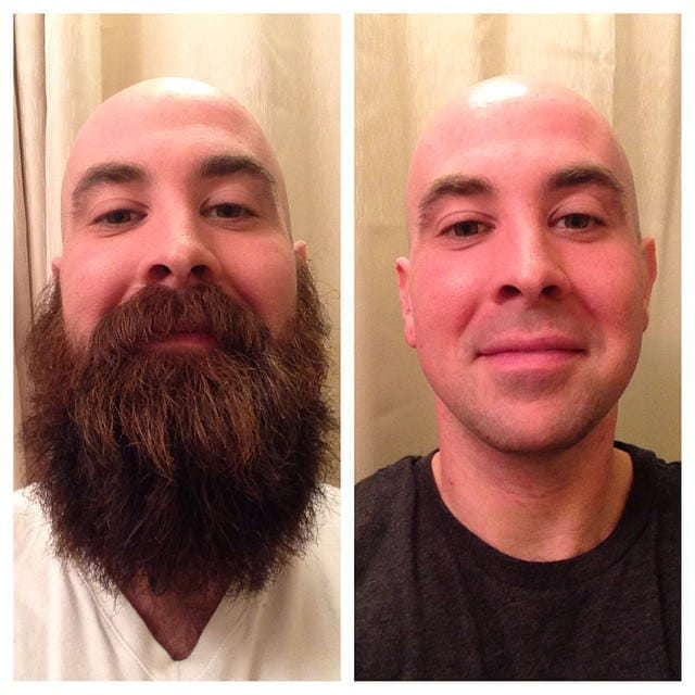 beard-before-and-after-43 45 Amazing Beard Before and After Transformation Photos