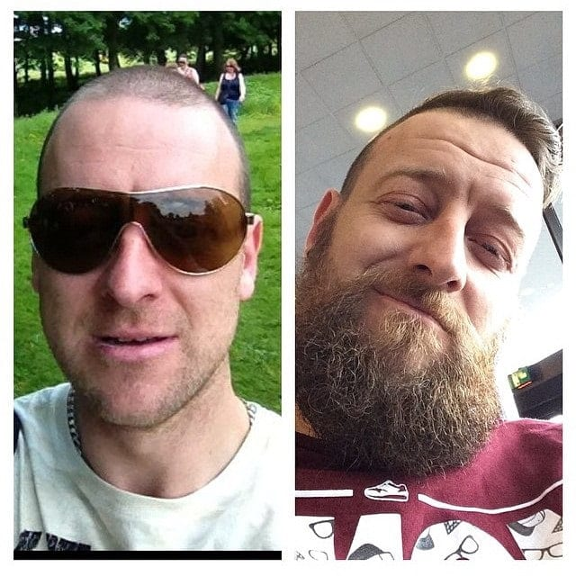 beard-before-and-after-45 45 Amazing Beard Before and After Transformation Photos
