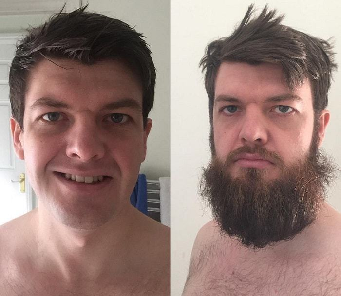 beard-before-and-after-6 45 Amazing Beard Before and After Transformation Photos