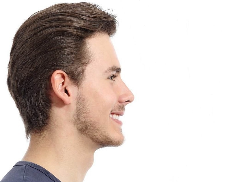 stages of facial hair growth
