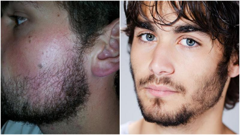 lack-of-facial-hair-on-cheek How to Grow Facial Hair on Your Cheeks