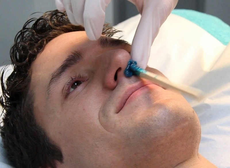 removing nose hair
