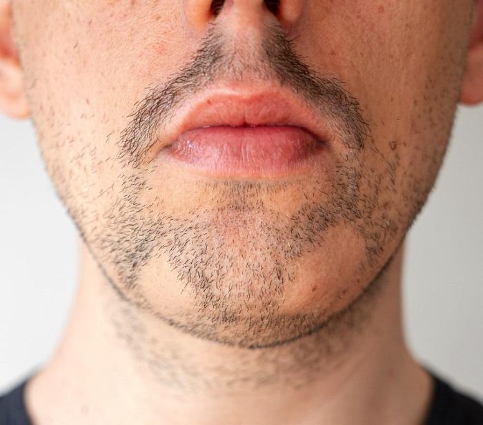 Alopecia bald spot above the chin