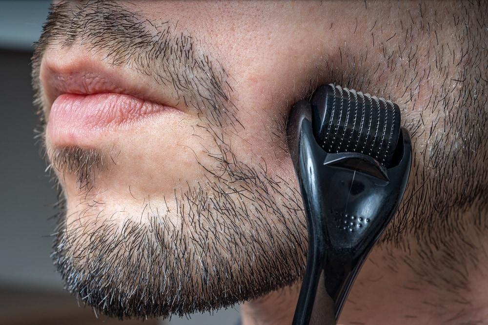 Dermarolling to remove peach fuzz beard