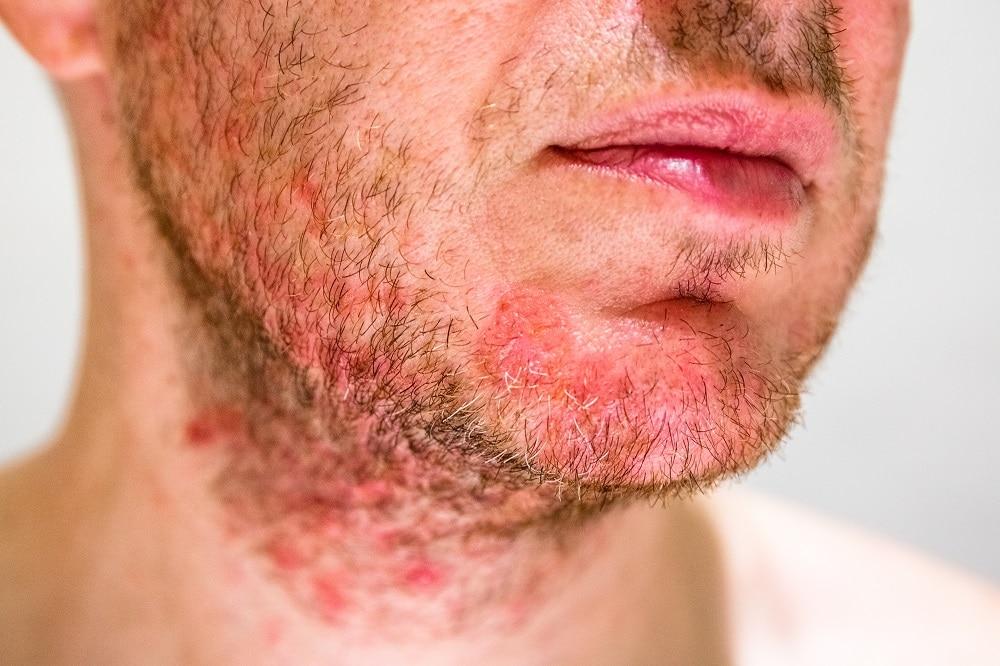 Skin Issues for Men