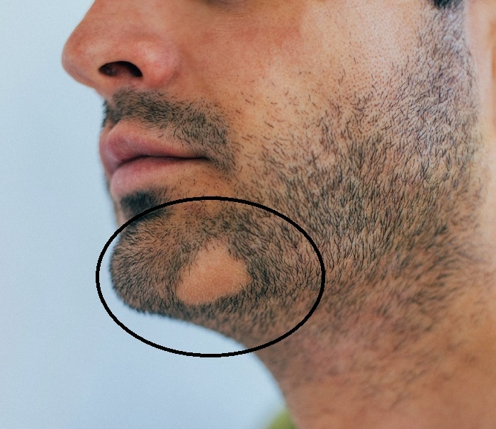 Bald Spot on the chin