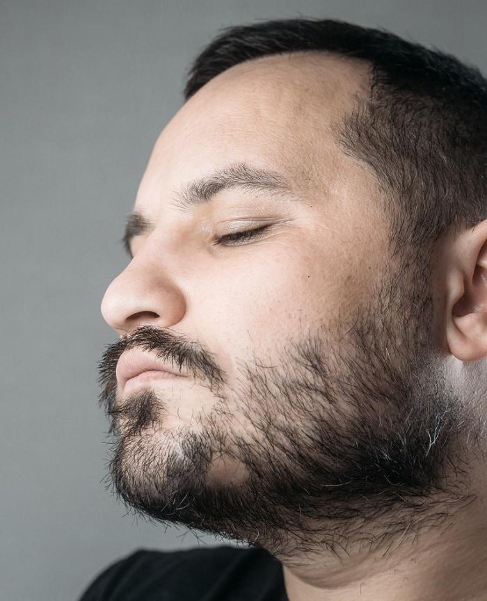 Beard bald spot under chin