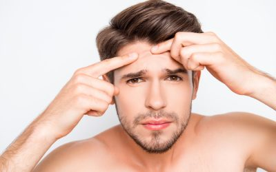 ways to prevent acne after shaving with an electric razor